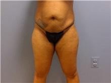 Tummy Tuck Before Photo by Emily Pollard, MD; Bala Cynwyd, PA - Case 31775