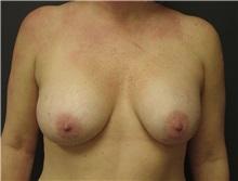 Breast Augmentation After Photo by Emily Pollard, MD; Bala Cynwyd, PA - Case 8027