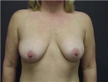 Breast Augmentation Before Photo by Emily Pollard, MD; Bala Cynwyd, PA - Case 8027