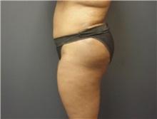 Tummy Tuck After Photo by Emily Pollard, MD; Bala Cynwyd, PA - Case 8712