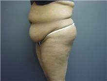 Tummy Tuck Before Photo by Emily Pollard, MD; Bala Cynwyd, PA - Case 8712