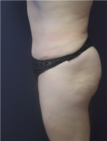 Tummy Tuck After Photo by Emily Pollard, MD; Bala Cynwyd, PA - Case 9707