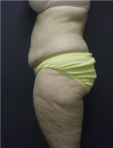 Tummy Tuck Before Photo by Emily Pollard, MD; Bala Cynwyd, PA - Case 9707