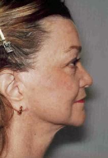 Facelift After Photo by Susan Kaweski, MD; La Mesa, CA - Case 7774