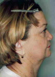 Facelift Before Photo by Susan Kaweski, MD; La Mesa, CA - Case 7774