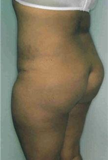 Liposuction After Photo by Susan Kaweski, MD; La Mesa, CA - Case 7997