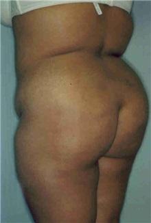Liposuction Before Photo by Susan Kaweski, MD; La Mesa, CA - Case 7997