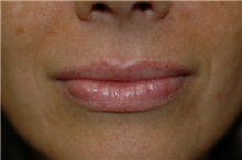 Dermal Fillers After Photo by Susan Kaweski, MD; La Mesa, CA - Case 8011