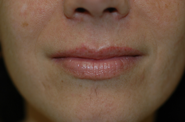 Injectable Fillers Picture