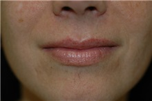 Dermal Fillers Before Photo by Susan Kaweski, MD; La Mesa, CA - Case 8011