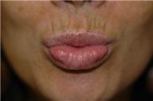 Dermal Fillers After Photo by Susan Kaweski, MD; La Mesa, CA - Case 8011