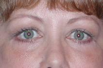 Eyelid Surgery After Photo by Bahram Ghaderi, MD, FACS; St. Charles, IL - Case 6978