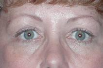 Eyelid Surgery Before Photo by Bahram Ghaderi, MD, FACS; St. Charles, IL - Case 6978