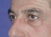 Eyelid Surgery Before Photo by Bahram Ghaderi, MD, FACS; St. Charles, IL - Case 6979