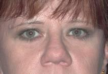 Eyelid Surgery After Photo by Bahram Ghaderi, MD, FACS; St. Charles, IL - Case 6980