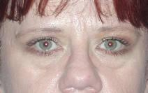 Eyelid Surgery Before Photo by Bahram Ghaderi, MD, FACS; St. Charles, IL - Case 6980