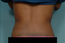 Liposuction After Photo by Ellen Janetzke, MD; Bloomfield Hills, MI - Case 23658