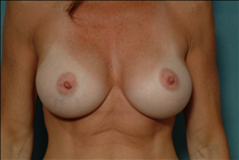 Breast Augmentation After Photo by Ellen Janetzke, MD; Bloomfield Hills, MI - Case 23770
