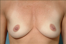 Breast Augmentation Before Photo by Ellen Janetzke, MD; Bloomfield Hills, MI - Case 23770
