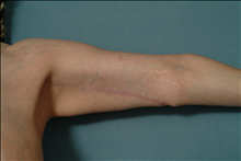 Arm Lift After Photo by Ellen Janetzke, MD; Bloomfield Hills, MI - Case 23835