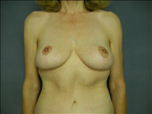 Breast Lift After Photo by Ellen Janetzke, MD; Bloomfield Hills, MI - Case 23854
