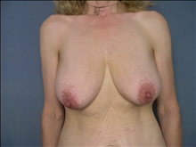Breast Lift Before Photo by Ellen Janetzke, MD; Bloomfield Hills, MI - Case 23854