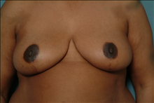 Breast Reduction After Photo by Ellen Janetzke, MD; Bloomfield Hills, MI - Case 23856