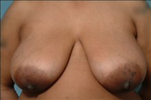 Breast Reduction Before Photo by Ellen Janetzke, MD; Bloomfield Hills, MI - Case 23856