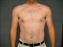 Male Breast Reduction After Photo by Ellen Janetzke, MD; Bloomfield Hills, MI - Case 23950