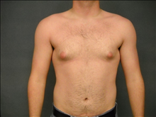 Male Breast Reduction Before Photo by Ellen Janetzke, MD; Bloomfield Hills, MI - Case 23950