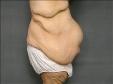 Body Contouring Before Photo by Ellen Janetzke, MD; Bloomfield Hills, MI - Case 25136