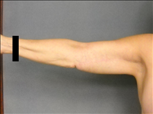 Arm Lift After Photo by Ellen Janetzke, MD; Bloomfield Hills, MI - Case 25140