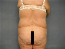Body Contouring Before Photo by Ellen Janetzke, MD; Bloomfield Hills, MI - Case 25141