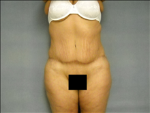 Body Contouring After Photo by Ellen Janetzke, MD; Bloomfield Hills, MI - Case 25507