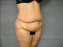 Body Contouring Before Photo by Ellen Janetzke, MD; Bloomfield Hills, MI - Case 25507