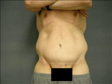 Body Contouring After Photo by Ellen Janetzke, MD; Bloomfield Hills, MI - Case 25508