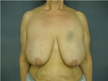 Breast Reduction Before Photo by Ellen Janetzke, MD; Bloomfield Hills, MI - Case 25792
