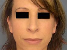 Rhinoplasty After Photo by Ellen Janetzke, MD; Bloomfield Hills, MI - Case 27257