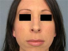 Rhinoplasty Before Photo by Ellen Janetzke, MD; Bloomfield Hills, MI - Case 27257