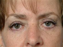 Eyelid Surgery After Photo by Ellen Janetzke, MD; Bloomfield Hills, MI - Case 27259