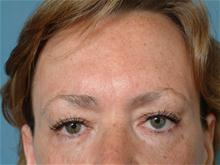 Eyelid Surgery Before Photo by Ellen Janetzke, MD; Bloomfield Hills, MI - Case 27259