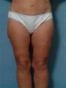 Body Contouring After Photo by Ellen Janetzke, MD; Bloomfield Hills, MI - Case 27264