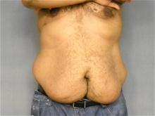 Body Contouring Before Photo by Ellen Janetzke, MD; Bloomfield Hills, MI - Case 27952