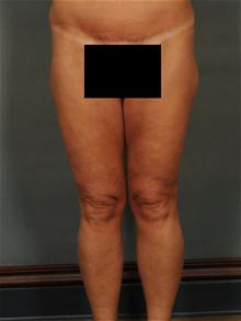 Body Contouring After Photo by Ellen Janetzke, MD; Bloomfield Hills, MI - Case 28676