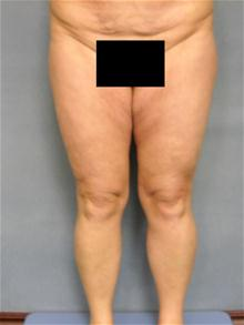Body Contouring Before Photo by Ellen Janetzke, MD; Bloomfield Hills, MI - Case 28676