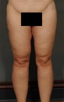 Thigh Lift After Photo by Ellen Janetzke, MD; Bloomfield Hills, MI - Case 29770