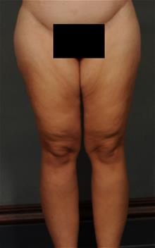Thigh Lift Before Photo by Ellen Janetzke, MD; Bloomfield Hills, MI - Case 29770