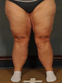 Thigh Lift After Photo by Ellen Janetzke, MD; Bloomfield Hills, MI - Case 29966