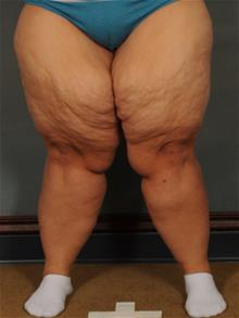 Thigh Lift Before Photo by Ellen Janetzke, MD; Bloomfield Hills, MI - Case 29966