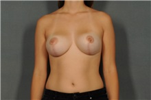 Breast Reduction After Photo by Ellen Janetzke, MD; Bloomfield Hills, MI - Case 30466